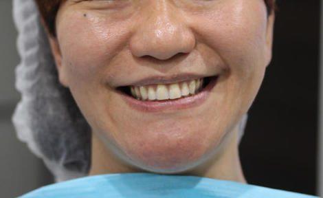 最短3日間で製作する総入れ歯