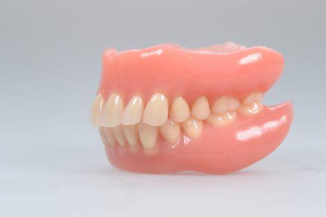 口を開くと上の入れ歯が外れ、落ちてしまいます