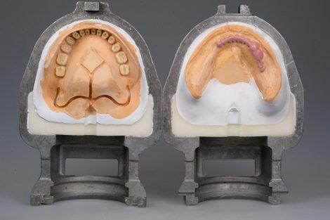 総入れ歯のデメリットについて