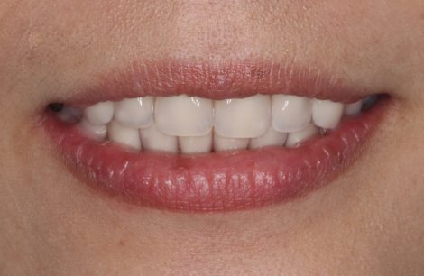 最新の総入れ歯について