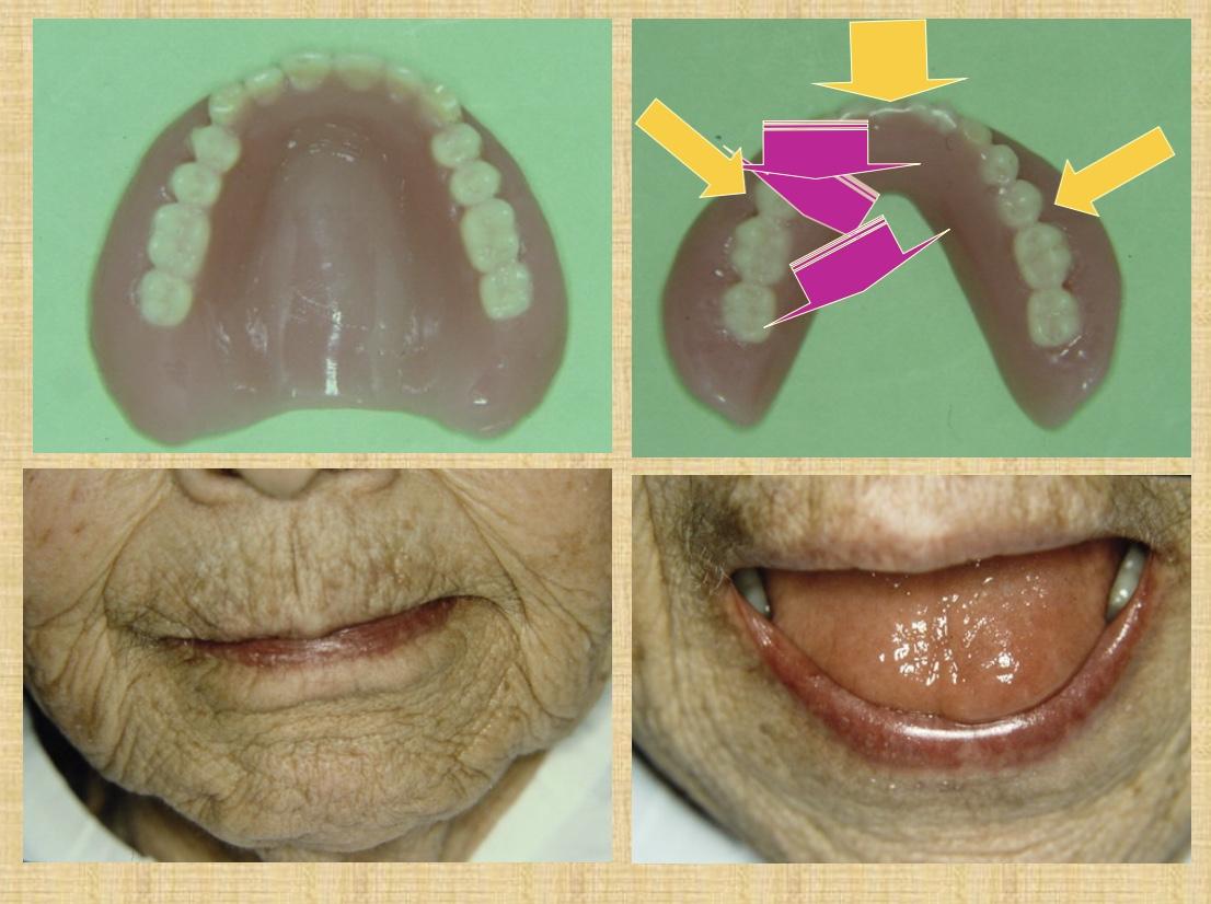パーキンソン病の舌の動きに合わせた入れ歯