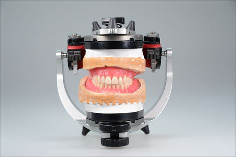 総入れ歯製作