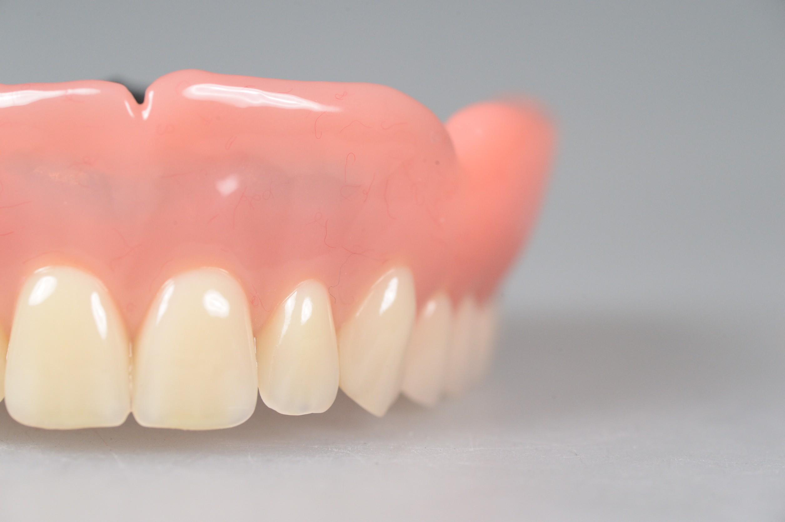 違和感のない総入れ歯