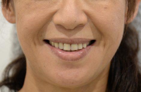総入れ歯の見た目