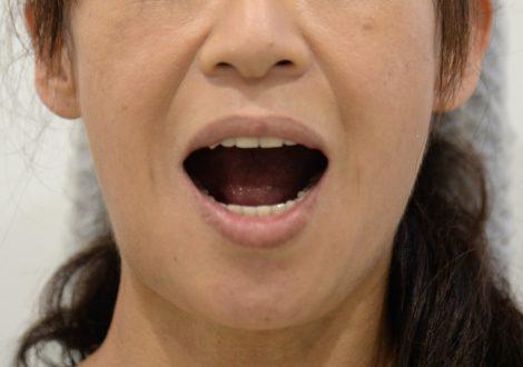 美しい総入れ歯