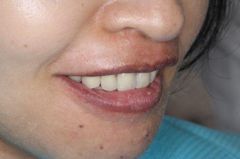 重度歯周病から総入れ歯へ