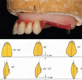 総入れ歯の歯並び